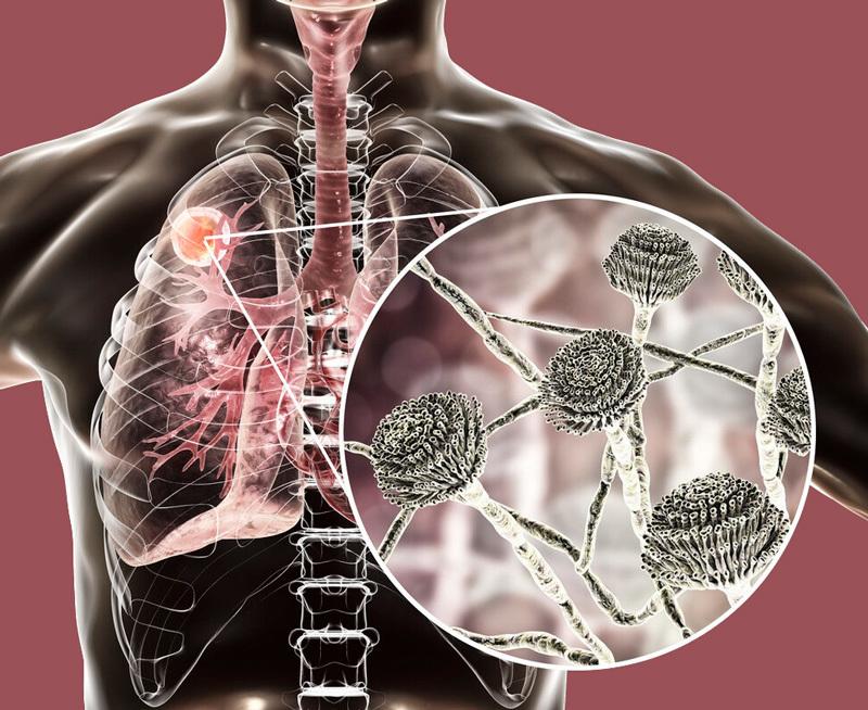 Забудьте об антибиотиках и лекарственных препаратах - выморите плесень из организма