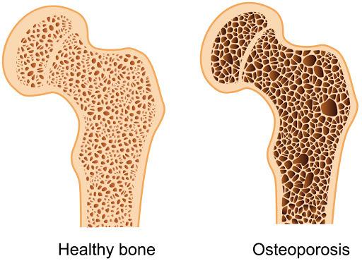 9 естественных подходов к борьбе с остеопорозом и потерей костной массы