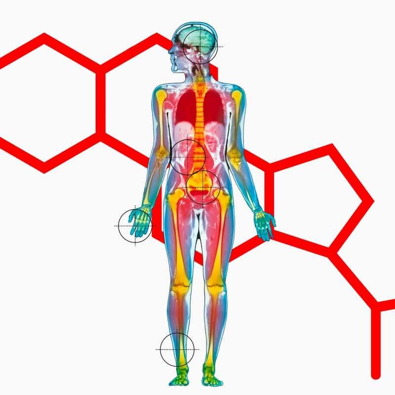 Последствия стресса для всех систем организма