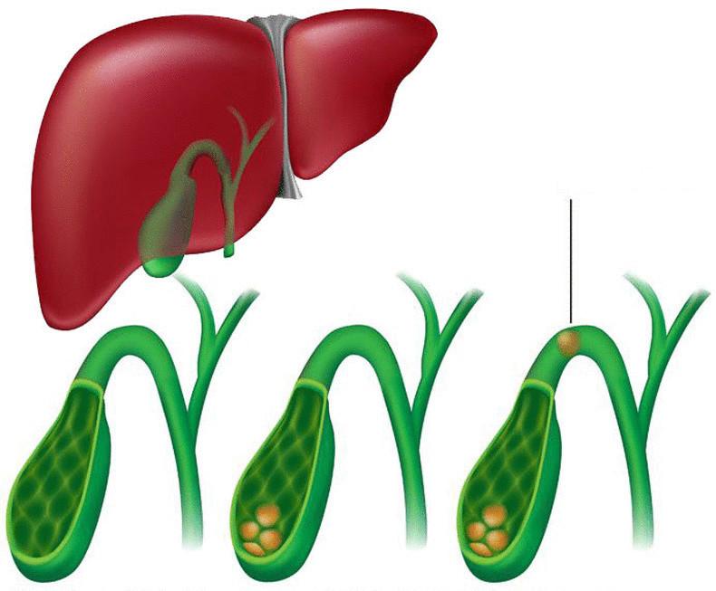избавление от холестерина в крови