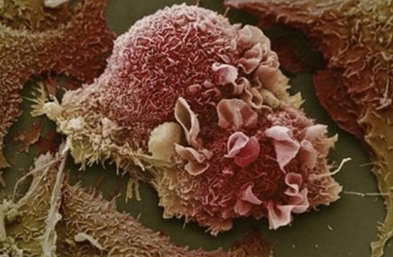 Как лечили рак знахари