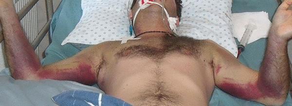 Заболевший конго-крымской геморрагической лихорадкой.