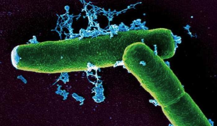 Так выглядит вирус лихорадки Мачупо.